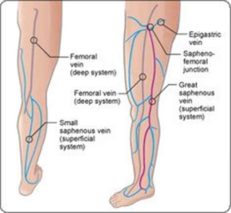 dr john layke spider vein solution dr oz says spider veins and varicose veins are easy to