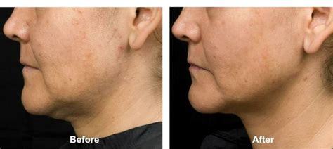 contour sagging jowls 47 best images about radiofrequency laser skin tightening