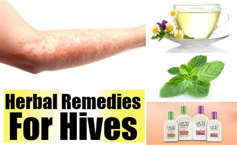 herbal remedies for hives home remedies