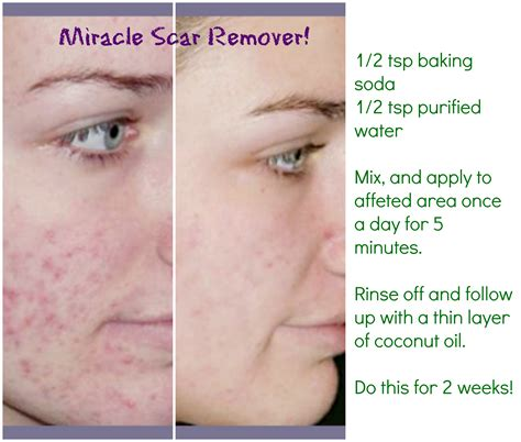 remove acne scars diy natural scar remover works wonders and it s cheap