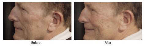 haircuts for to hide hearing aids hair style for men with hearing aids does your hearing