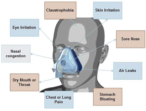 Cpap Nasal Pillows Problems by Solutions To Common Cpap Problems David C Brodner Md