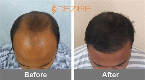 30000 Hair Graft Cost | best hair transplant clinic in pune for natural
