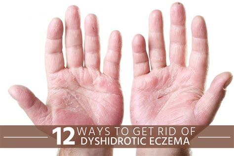 12 ways to get rid of dyshidrotic eczema crasher