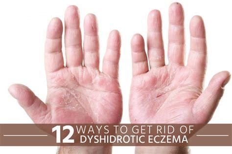 12 ways to get rid of dyshidrotic eczema crasher