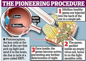 Color Blind Cure Gene Therapy Scientists Use Gene Therapy In Bid To Save Man S Sight