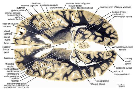 horizontal section of brain horizontal level 1400 as fiber stain