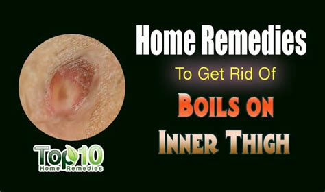 how to get rid of boils on inner thigh home home