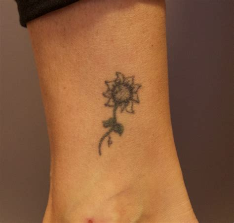 tattoo removal after laser removal before and after the untattoo