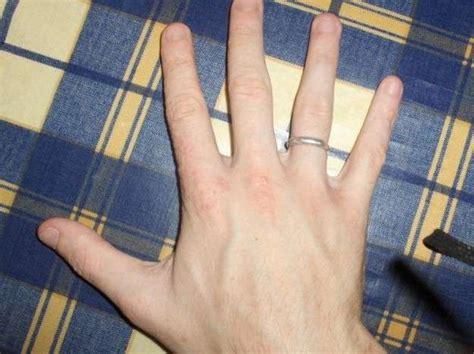 brufoli al sedere dermatite alle foto nanopress donna