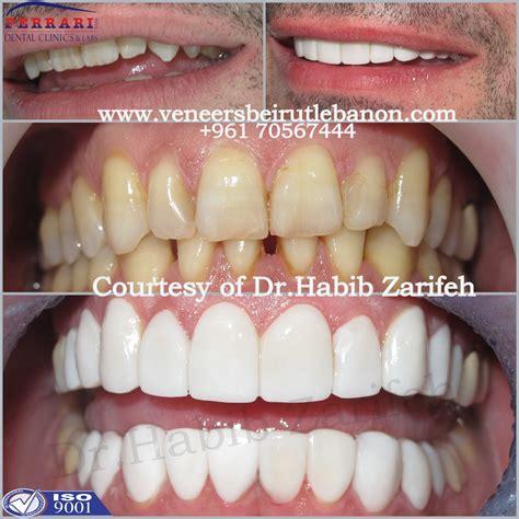 teeth whitening hollywood tinyteens pics