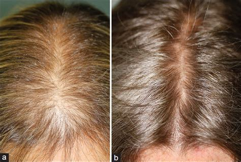 female pattern hair loss dutasteride international journal of trichology table of contents