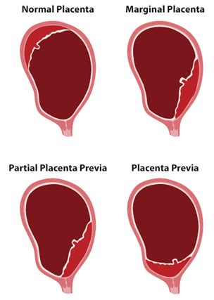 placenta previa bed rest placenta previa bed rest 28 images various types of