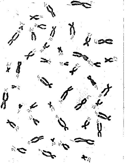 biology karyotype worksheet answers karyotyping worksheet bluegreenish