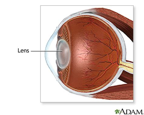 Resume Normal Activities After Cataract Surgery Cataract Removal Uf Health Of Florida Health