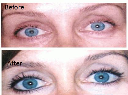 tattoo eyeliner before and after eyeliner before and after yelp