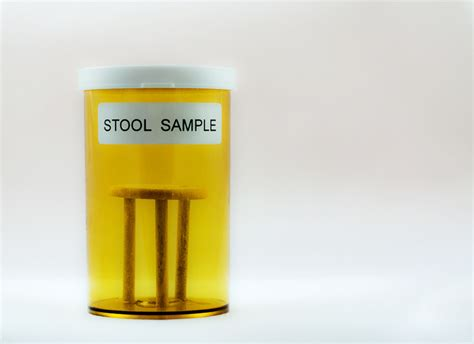 Stool Donation by Experiences Rapid Weight Gain After Fecal Transplant From Overweight Donor