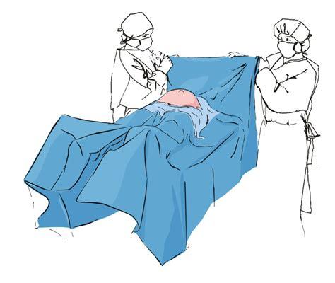 surgical draping matopat en