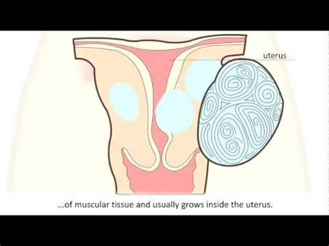 Uterus Shrinking After C Section by