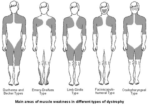 myotonic dystrophy pattern of weakness diagnosis muscular dystrophy diagnosis