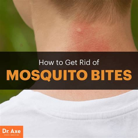 how to get rid of mosquitoes best 25 remedies for mosquito bites ideas on pinterest