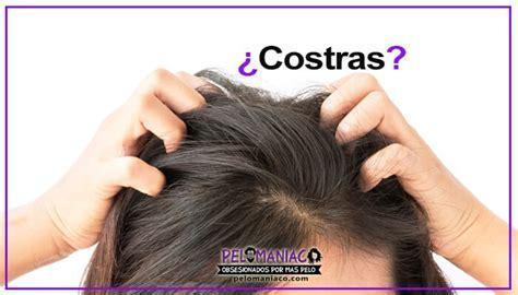 tengo costras en el cuero cabelludo costras en el cuero cabelludo causas y remedios caseros