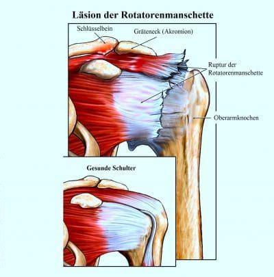 schmerzen in der hüfte beim liegen schlafen schulterschmerzen armschmerzen links rechts heben