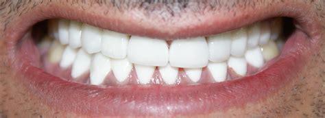 cheema dental implant centre hollywood smiles