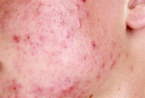 vasi capillari rotti rottura capillari viso cause cura della pelle