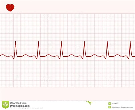 normal electronic cardiogram eps 8 stock vector image