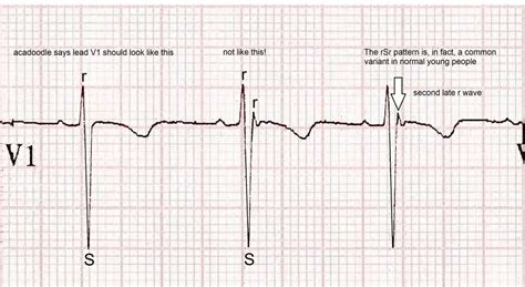 rsr pattern ecg meaning acadoodle