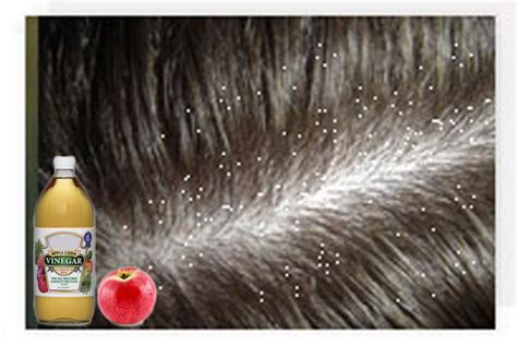 Can A Hair Dryer Cause Dandruff divalicious 20 home remedies to get rid of dandruff