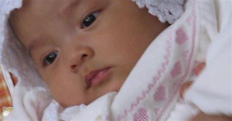 Bayi Alergi lovely khalisa kulit bayi dan alergi