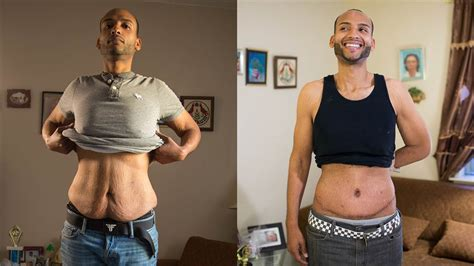 Does Losing Weight Reduce Neck Skin Sag   after huge weight loss sagging skin remains nbc news