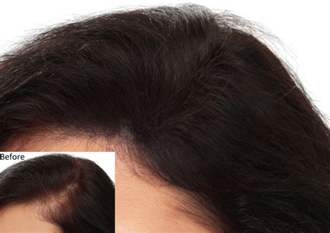homemade hair thickening treatments hair thickening treatments best 25 hair thickening