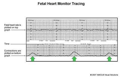 heart monitor pattern pin by jill on nursing peds l d pinterest