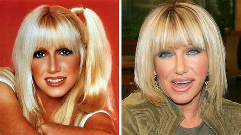 suzanne somers celebrity plastic surgery 24 suzanne somers plastic surgery youtube