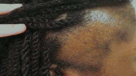 can people with severe alopecia get braids traction alopecia traction alopecia 171 wcco cbs minnesota