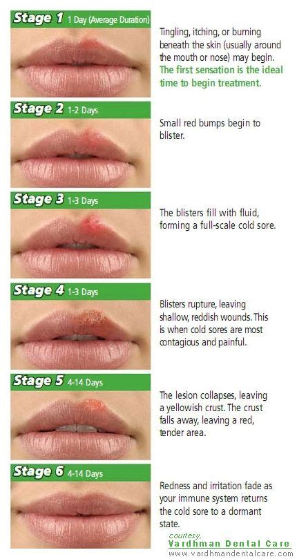 Herpes Detox by Cold Sores Stages Of Progression Of The Lesion