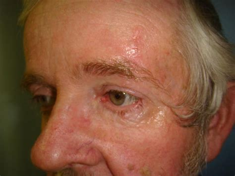 About My Skin Cancer by Skin Cancer Hobbs Plastic Surgery
