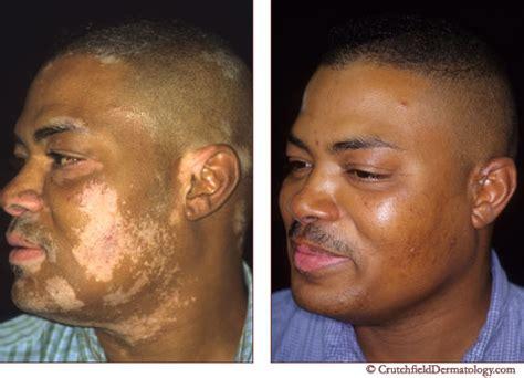 vitiligo vitiligo doctor vitiligo treament cure vitiligo