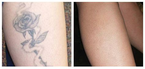 new tattoo removal pictures of before and after tattoo removal inkerase