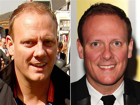 Antony Cottons Hair Transplant | antony cotton hair transplant has the coronation street