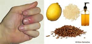 paronychia home treatment home remedies for whitlow reduce risk of whitlow