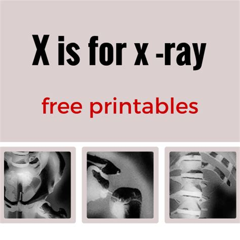printable x rays x is for x ray free printables stella123