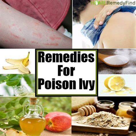 10 home remedies for poison things to