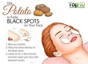 make my house home remedies for black spots on your face top 10 home