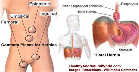 pulled abdominal muscles  hernia  easy ways