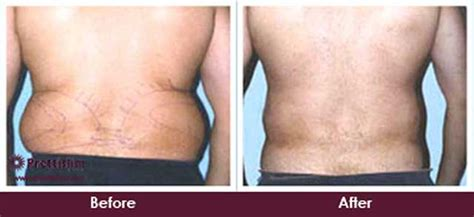 Did Banks Liposuction by Handles Muffin Top Treatment In India Prettislim