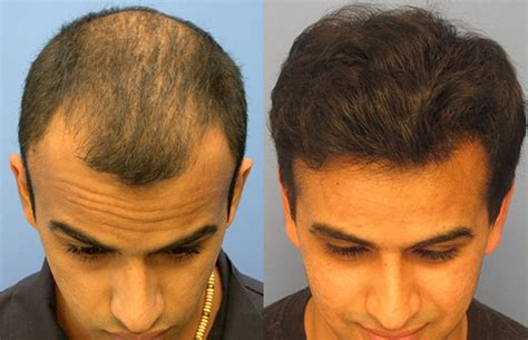 best hairtransplant in the world hair transplant incredible hair transplant surgery results